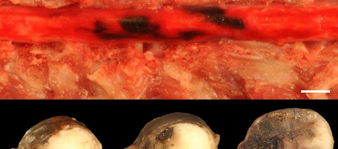 Cat,  Spinal cord: Severe, acute, focally-extensive myelomalacia and multifocal subdural hemorrhage